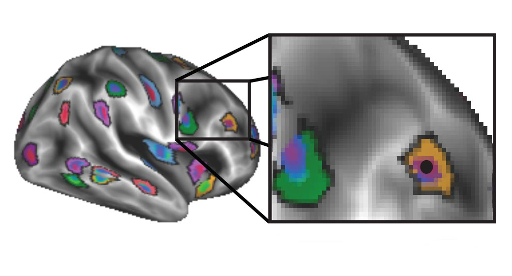 Illustration showing brain image after applying personalized mapping
