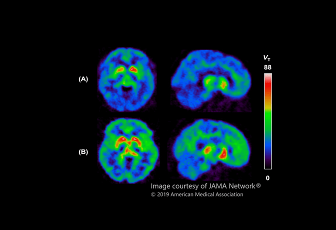 Brain images showing MAO-B levels in a depression study by CAMH's Dr. Jeffrey Meyer